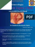 tumoresdevaginayvulva-dr buñay