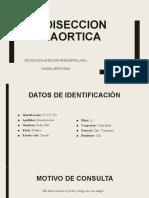 DISECCION AORTICA