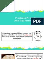 Penutupan Pit dan Fisura pada Gigi Permanen Anak