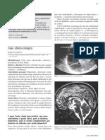caso de hidrocefalia.pdf