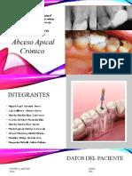 Presentacion casos clínicos ABCESO APICAL CRONICO