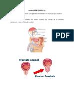 CÁNCER DE PRÓSTATA.docx