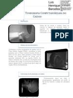 Tomografia Computadorizada - Posicionamento e Anatomia