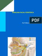 paralisia periférica