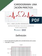 Presentación EKG