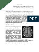 Mehu_U2_T1_Enfermedad AlzheimerCasoClÃ_nico