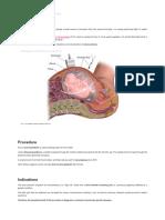Amniocentesis - Indications - Complications - Procedure - TeachMeObGyn