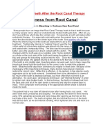 Effects of Teeth After the Root Canal Therapy