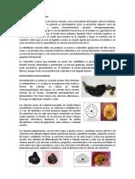 Características-morfológicas-COLELITIASIS