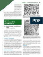 Glomerulonefritis post infecciosa