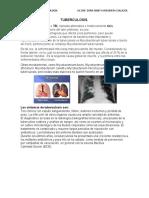 Tuberculosis Pulmonar y Extra Pulmonar