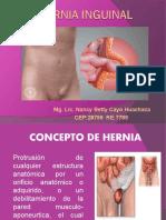 375065435-Hernia-Inguinal.ppt