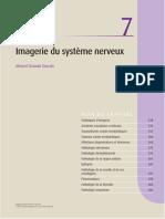 ++ IRM cerebrale .pdf