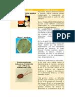 Tabla de Microorganismo