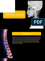 Osteofitos - deglu