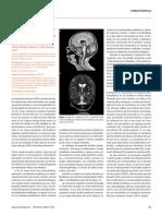 Nueva mutación en el gen CASK en un niño con síndrome de microcefalia e hipoplasia pontocerebelosa