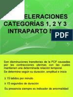 DESACELERACIONES CATEGORÍAS 1, 2 Y 3 INTRAPARTO NST .ppt