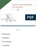 accouchement_en_presentation_du_sommet-diapos