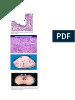 Próstata y pancreas