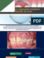 Enfermedades gingivales no inducidas por placa(1)