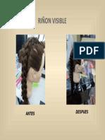 RIÑON VISIBLE.pptx