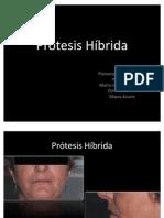 Prótesis Híbrida