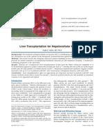 Liver Transplantation for Hepatocellular Carcinoma