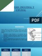 hernias inguinales o crurales [Autoguardado]