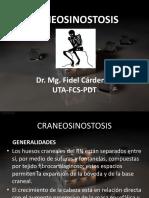 Craneosinostosis