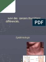 Présentation cancer thyroidien