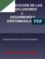 clasificacion de las maloclusiones y desarmonias lusiones.pptx