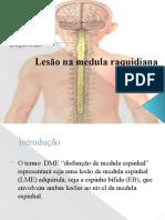 Lesao Medula raquidiana