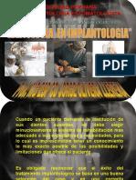 Radiología en implantes dentales