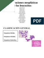 Proliferaciones neoplásicas de los leucocitos Diapos
