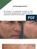 ejercicio de pigmentacion
