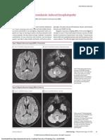 encefalopatia inducido por metronidazol.pdf