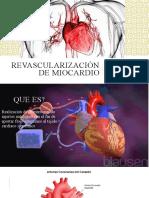 Revascularización de Miocardio