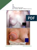 Penyakit Bahaya / Kanser Utama Wanita [Untuk Bacaan Dewasa]