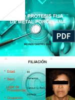 PPR y PROTESIS FIJA DE METAL PORCELANA