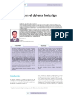 extrusion-invisalign ROMAN DESCARGADO me