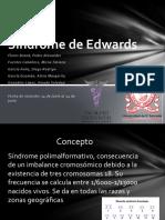 Síndrome-de-Edwards
