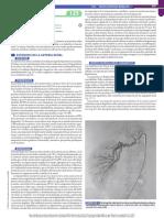 Estenosis Arteria renal - Goldman