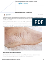 Como tratar os pés e calcanhares rachados (em 4 passos) - Tua Saúde