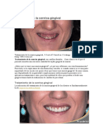 Tratamiento de la sonrisa gingival
