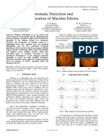 Automatic Detection and Localization of Macular Edema