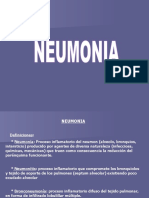 Neumonia