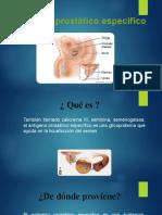Antigeno_Prostatico.pptx