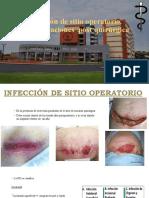 Infección de sitio operatorio(ISO)