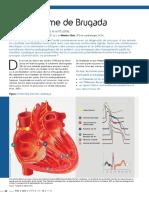 Syndrome Brugada 2.pdf