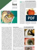 Revolutie in de oogchirurgie
